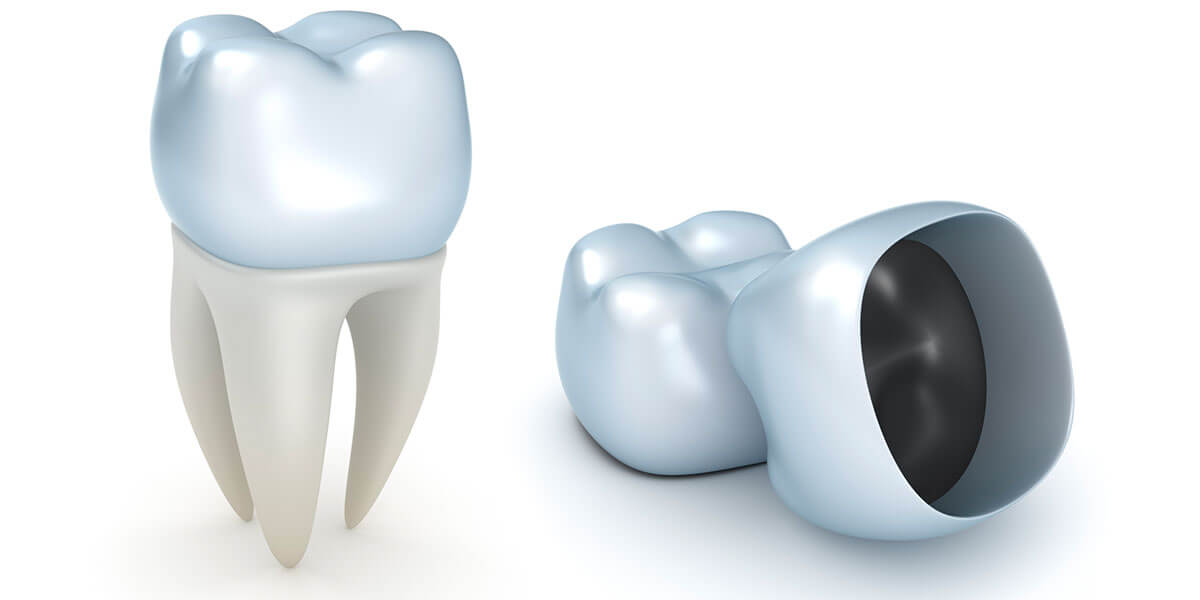 Dental crowns illustration
